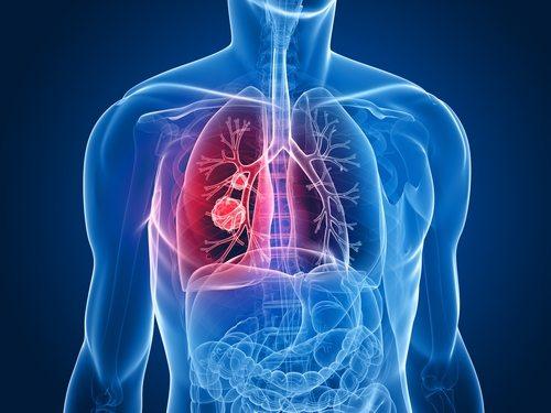 Інші причини хронічного кашлю