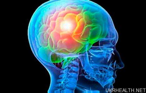 Створено метод лікування стійкої епілепсії