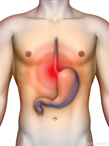 Дієта при виразці шлунку