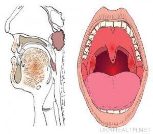 Рак гортані