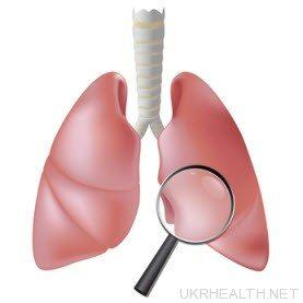 Туберкульоз: що потрібно знати?