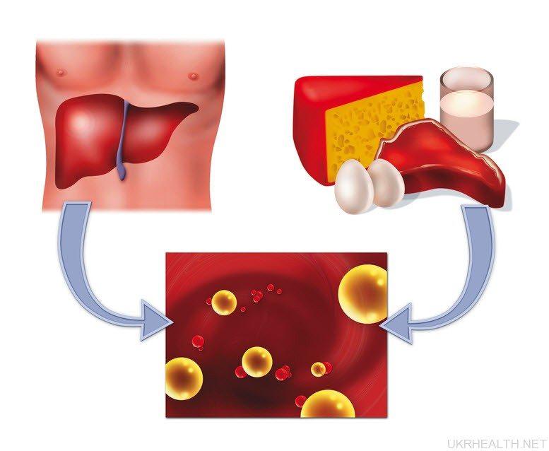Хвороби печінки