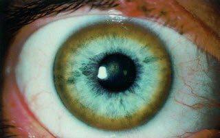 хвороба вільсона-коноваленка
