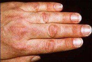 дерматоміозит