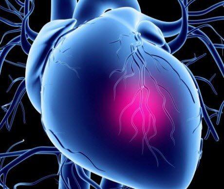 Порок серця