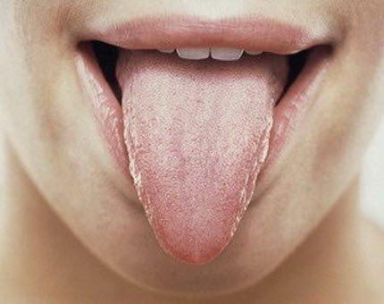 Запалення язика