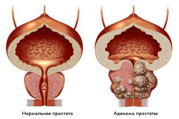5 страшних історій про аденому простати