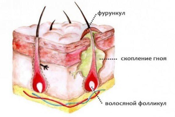 Розтин фурункула