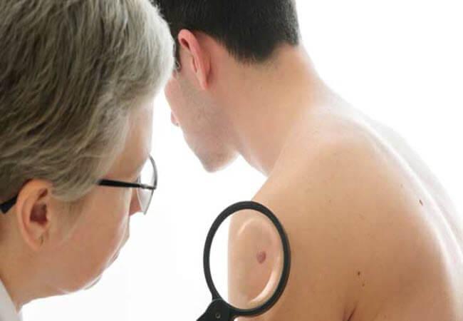 Симптоми раку у чоловіків