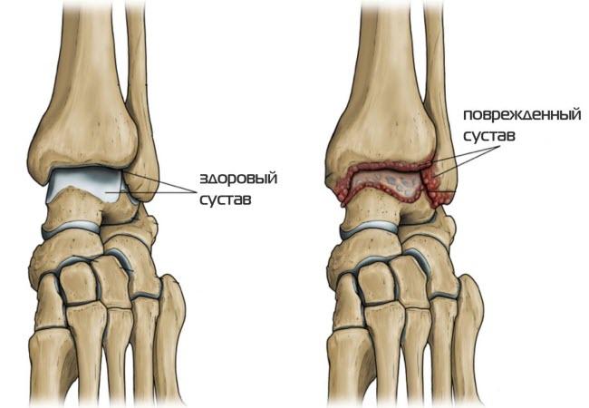 артрит гомілковостопного суглоба лікування