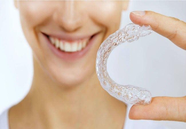Гелі для відбілювання зубів