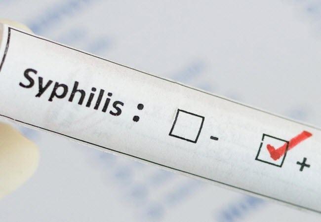Сифіліс