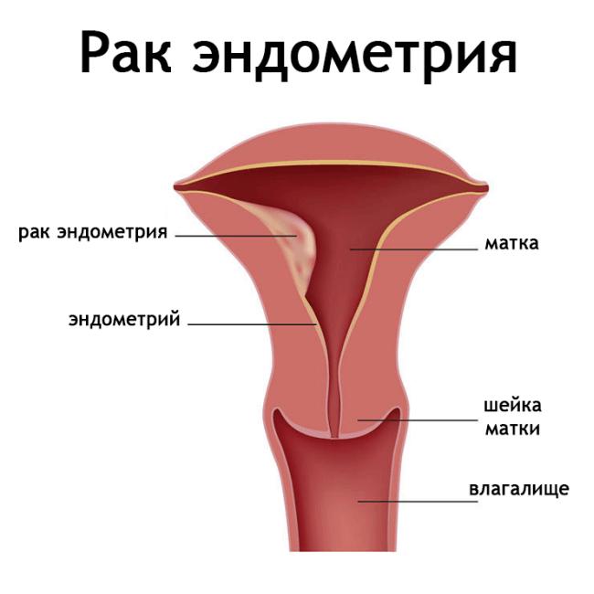 Рак ендометрія