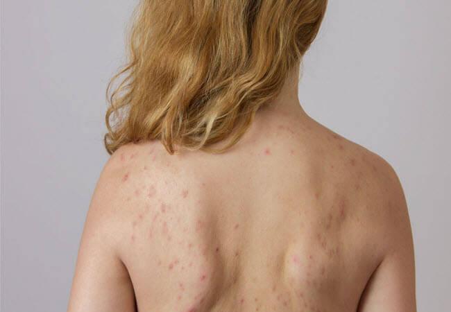 Методи лікування акне на тілі