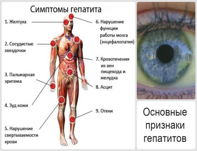Гепатит А, гепатит В та С