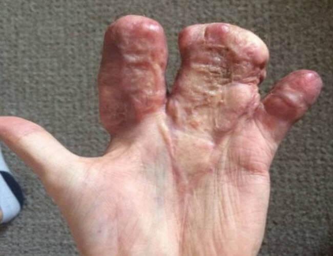 Пришита рука
