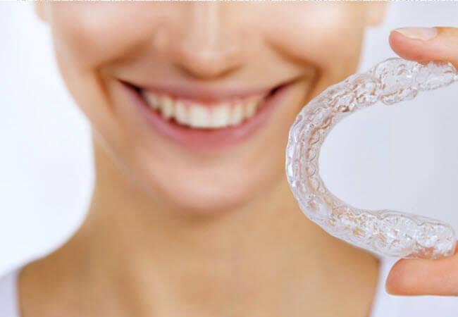 відбілювати зуби