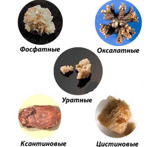 Види каменів в нирках