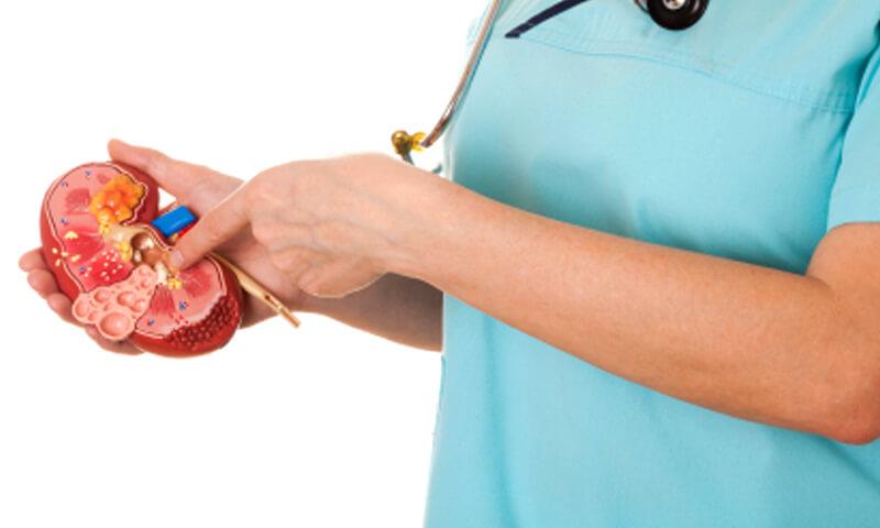симптоми каменів у нирках