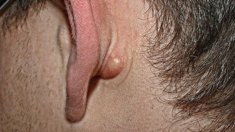 Шишка за вухом