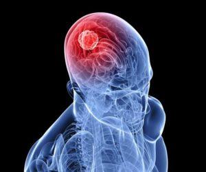 Пухлина в мозку