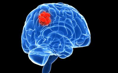 пухлина мозку