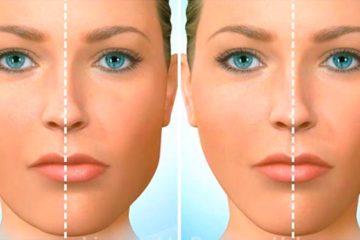асиметрія обличчя