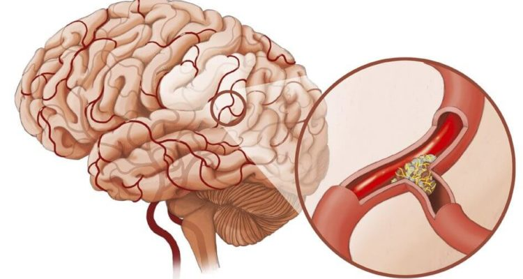 Ішемічний інсульт