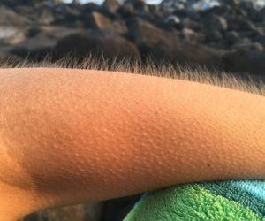 Мурашки на шкірі