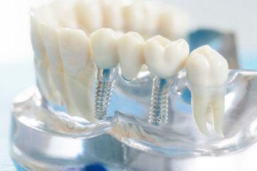 Протезування зубів