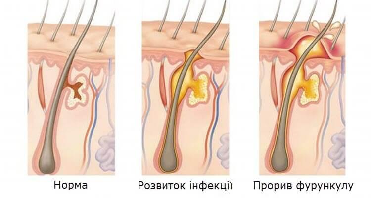 Як розвивається фурункул