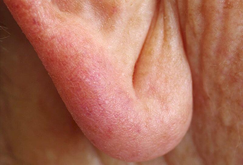 Діагональна складка в області мочки вуха