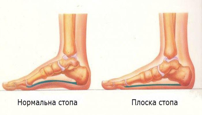 Нормальна і плоска стопи