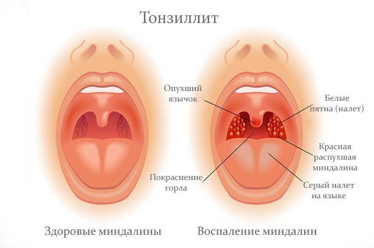 Тонзиліт