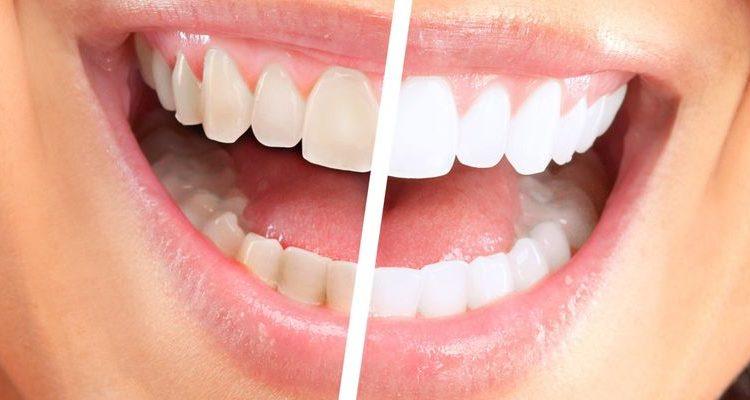 Відбілювання зубів