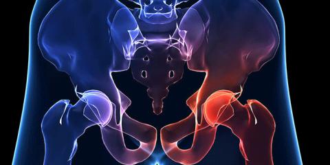 остеоартроз тазостегнового суглобу