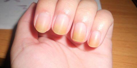 Жовті нігті