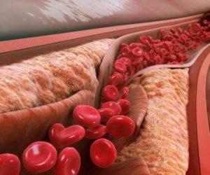 Судини (холестерин)