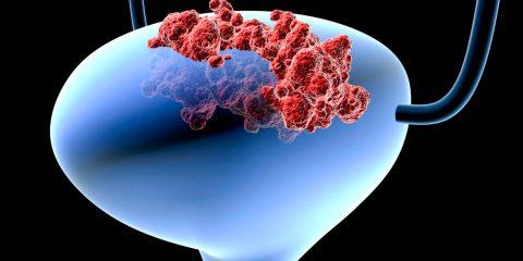 Рак сечового міхура