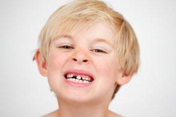 Как сохранить молочные зубы ребенка здоровыми