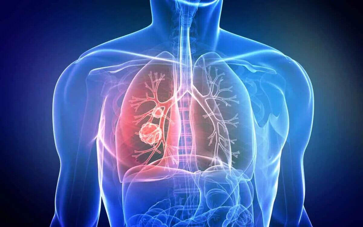 Рак легень