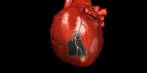 Інфаркт міокард