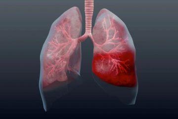 Мокрота в легенях