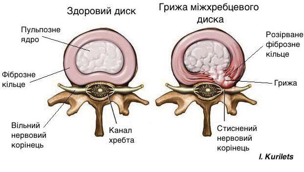 Грижа хребта в порівнянні зі здоровою спиною
