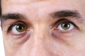 Круги під очима