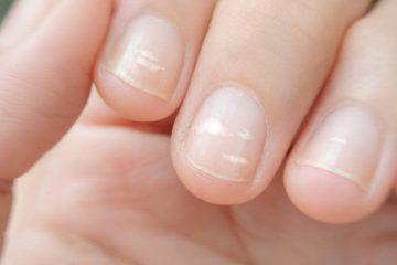 білі плями на нігтях