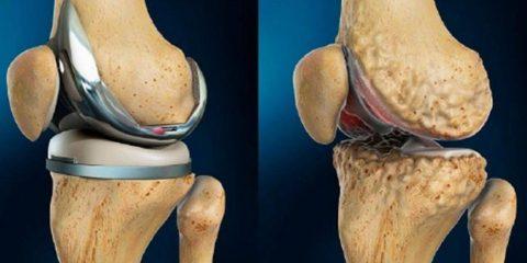 Ендопротезування колінного суглоба