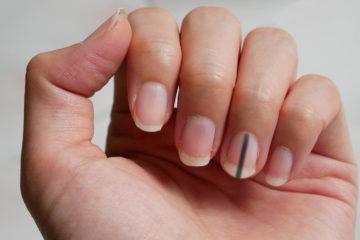 Чорні полоски на нігтях