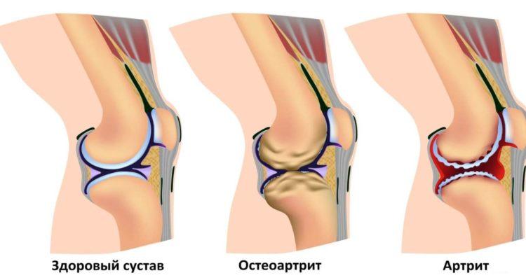 Типы болезней суставов