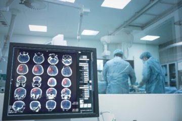 Нейрохірургія